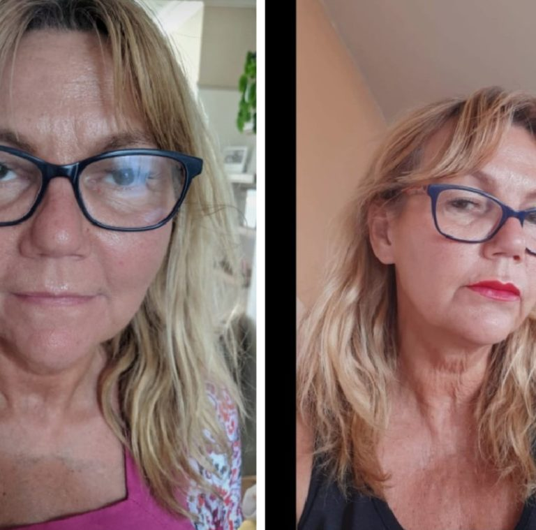 Home Botox Anti Wrinkle Injections, Dermal Filler Clinic Ramsgate