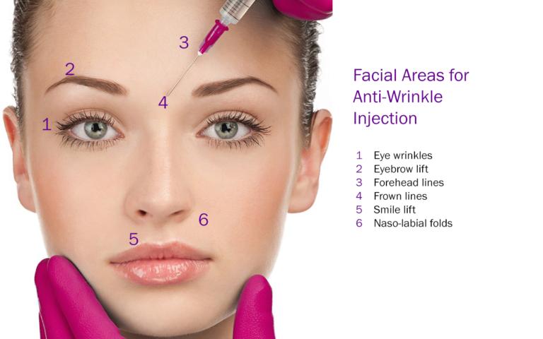 Botox Anti Wrinkle Treatable Areas